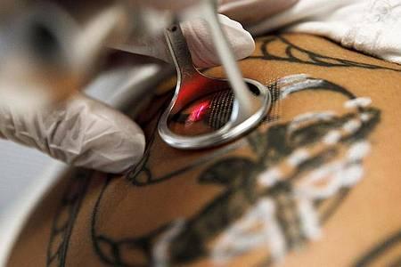 Wird ein Tattoo per Laser entfernt, muss die Behandlung in der Regel mehrmals wiederholt werden. Foto: Carsten Koall/dpa/dpa-tmn