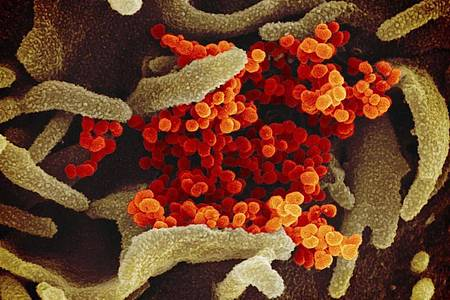 Eine elektronenmikroskopische Aufnahme zeigt das Coronavirus (SARS-CoV-2, orange), das aus der Oberfläche von im Labor kultivierten Zellen (grau) austritt. Foto: ---/NIAID-RML/dpa