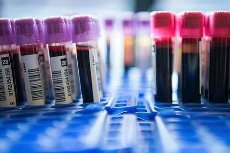 Spezielle Tests können Erbgut von Krebszellen im Blut nachweisen. Foto: picture alliance / dpa